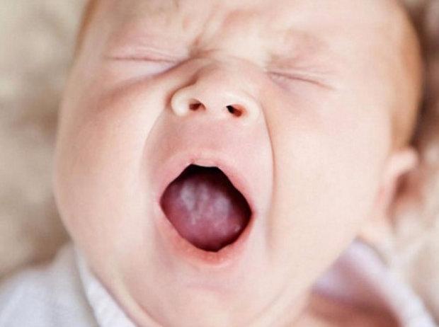 Симптомы молочницы у грудничка