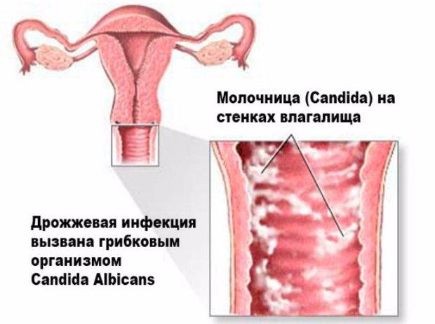 Чем лечить молочницу у мужчин форум Самые интересные факты обо всем Tattoodima.ru