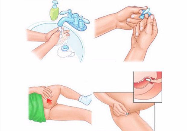 Как правильно свечи от простатита