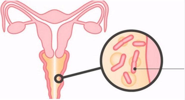mazki-na-vaginalniy-sekret