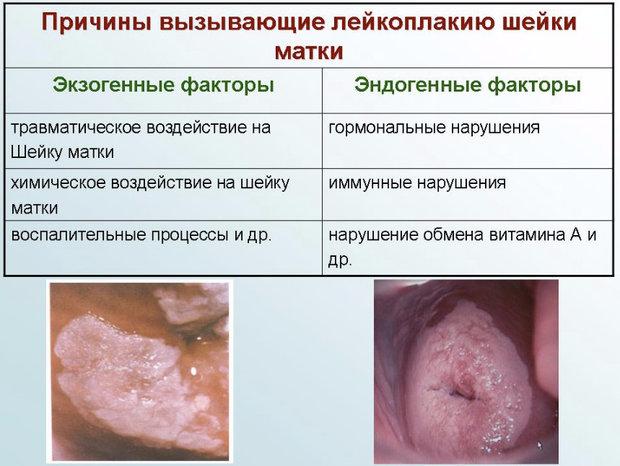Лейкоплакия шейки матки что это такое: описание болезни, причины, симптомы, диагностика, лечение