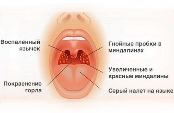 Как убрать кашель у беременной 49
