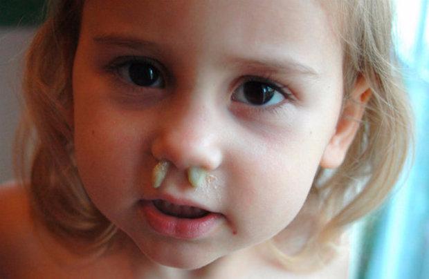 Зеленые сопли у ребенка: чем и как лечить, причины появления ...