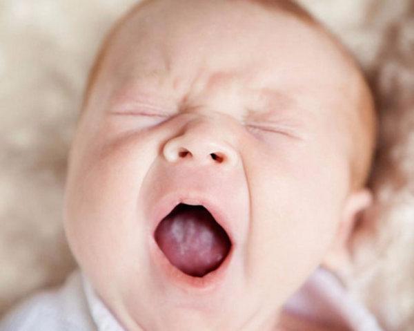 Молочница у детей во рту: на губах и языка, на коже, на попе и в кишечнике — симптомы, причины и лечение кандидоза: как выглядит молочница у грудного ребёнка