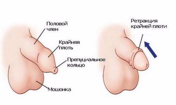 Схемы береты крючком