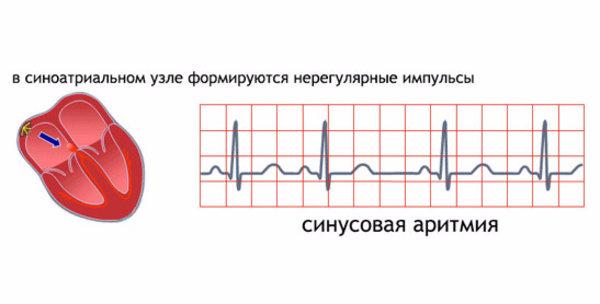 Синусовый ритм сердца норма у беременных 44