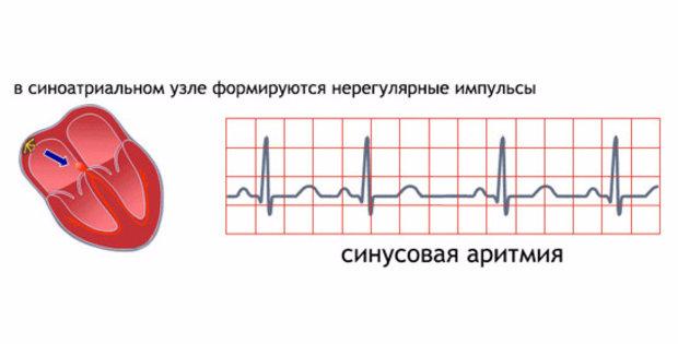 33829.owbt7c.620 - Arythmie sinusale pendant la grossesse que menace