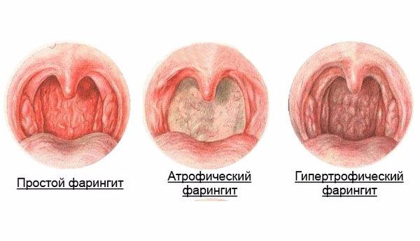 Виды фарингита симптомы и лечение