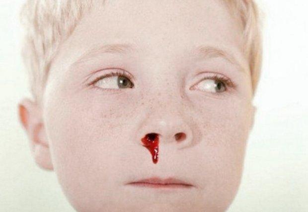 Почему у ребенка болит голова и течет из носа кровь