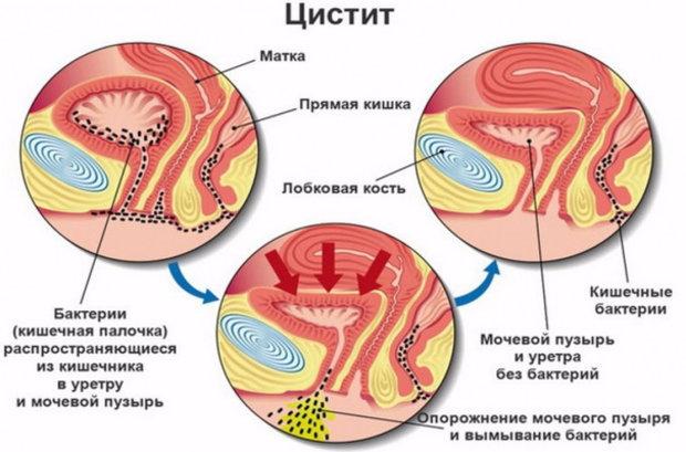Эритроциты в моче при беременности норма причины повышения у беременных женщин