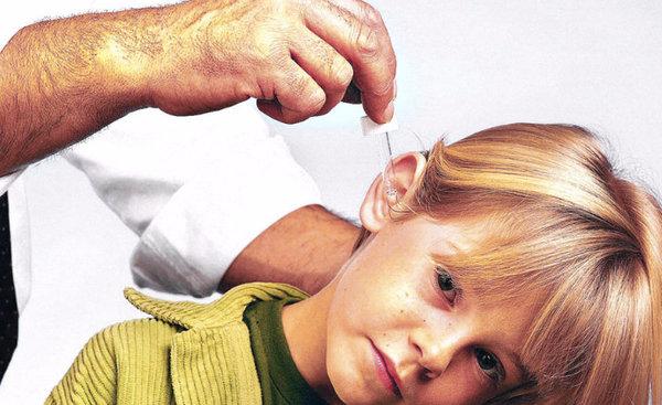 гнойный артрита у детей