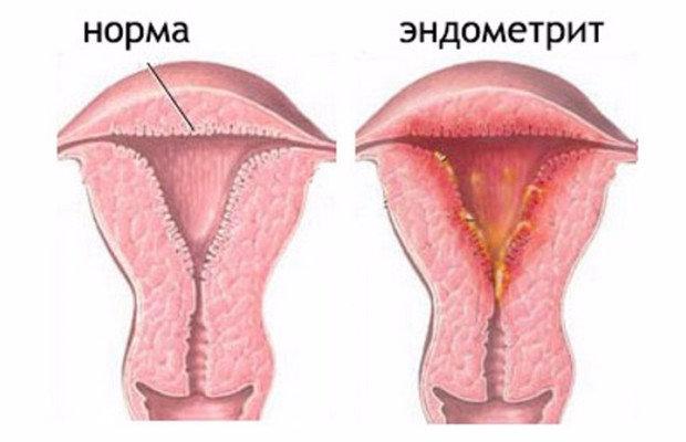 Выделения после родов (лохии): виды, сколько идут, нормы и отклонения, правила гигиены, как избежать кровотечения