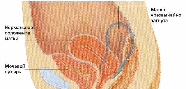 Загиб матки после родов: виды, причины, последствия, методы лечения