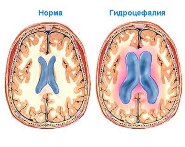 признаки гидроцефального синдрома у детей до года