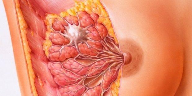 Фиброзно-кистозная мастопатия: что это такое, можно ли рожать, симптомы, диагностика, лечение