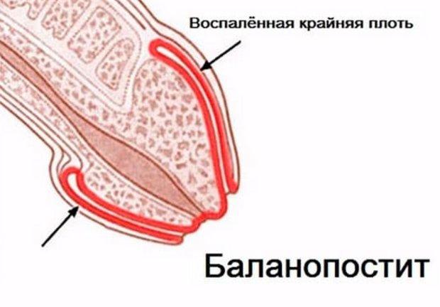 Баланопостит у ребенка  воспаление крайней плоти