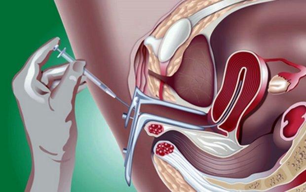Метод обработки спермы для искусственной инсеминации