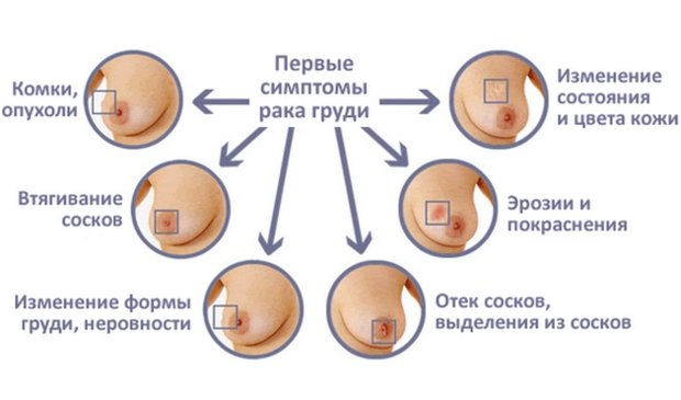 Симптомы при раке грудных желез у женщин