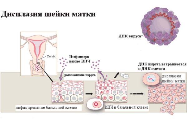 Дисплазия шейки матки при климаксе лечение