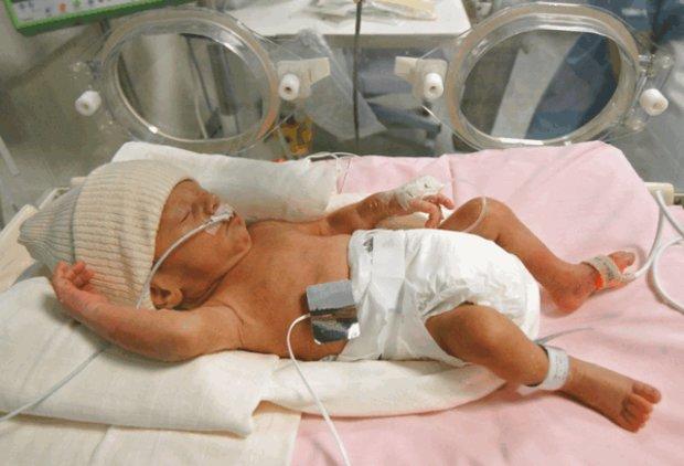 Глубоко недоношенные дети фото таких детей