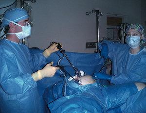 Хирургическое лечение кисты яичника. Удаление кисты яичника