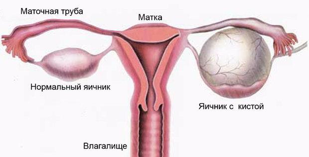 Удаление кисты яичников последствия после операции