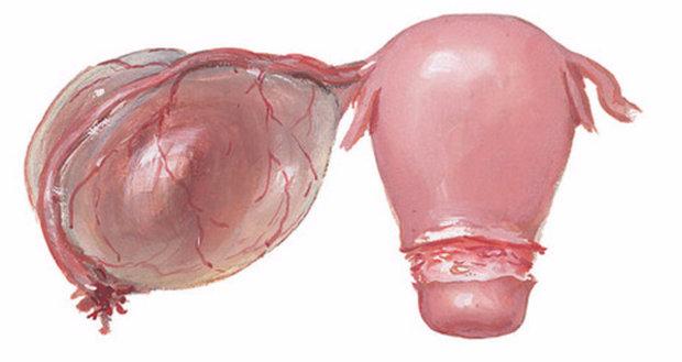 Операция по удалению кисты яичника - виды как проходит насколько опасна