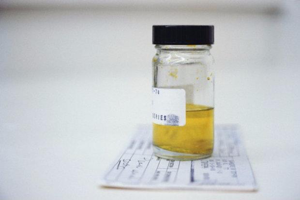 Анализ крови на пищевую непереносимость ГЕМОКОД