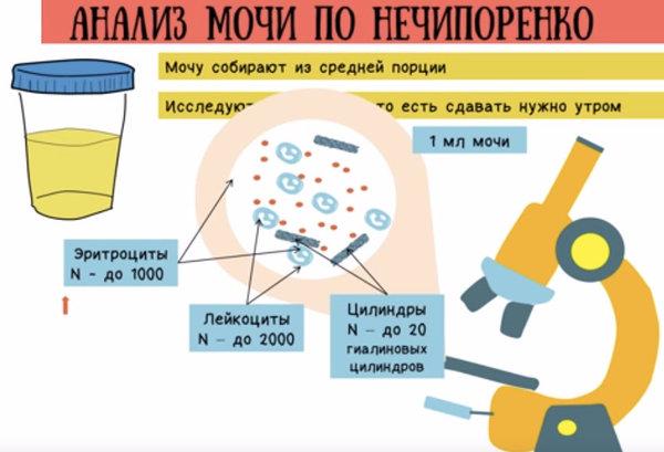 Как собрать анализ по нечипоренко у беременных 9