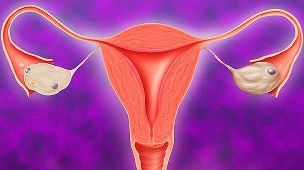 Беременность при гипоплазии матки