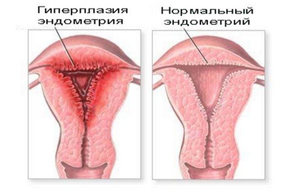 Реабилитация после эрозии шейки матки