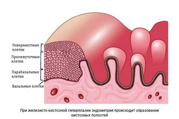 Формы и стадии аденомиоза