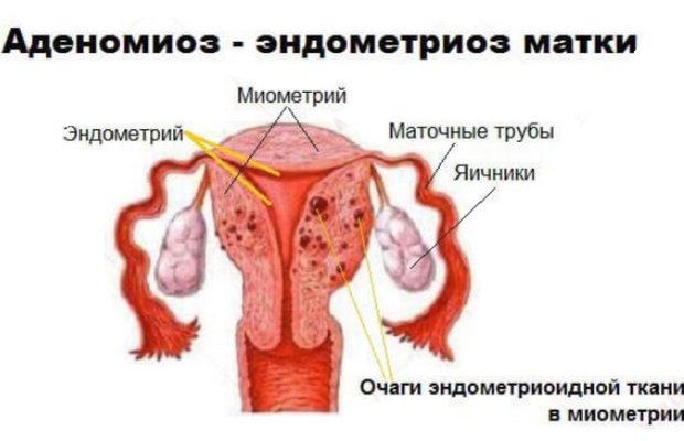 Миометрия по типу эндометриоза