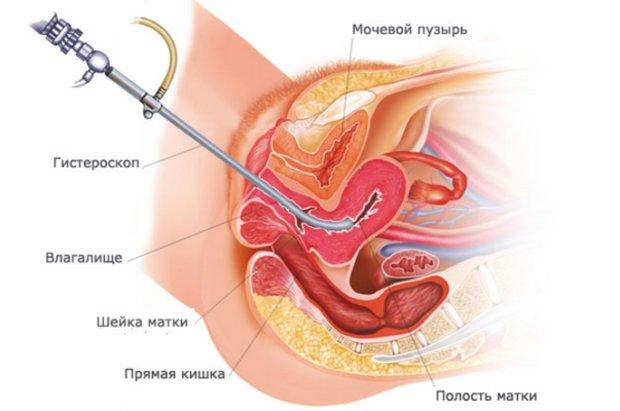 Серозометра и климакс