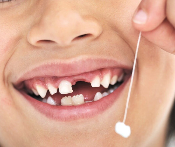 Когда выпадают молочные зубы у детей