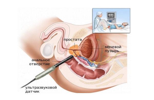 Узи мочевого пузыря у беременных 93