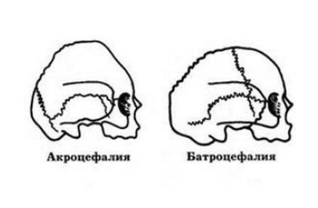 Формы головы